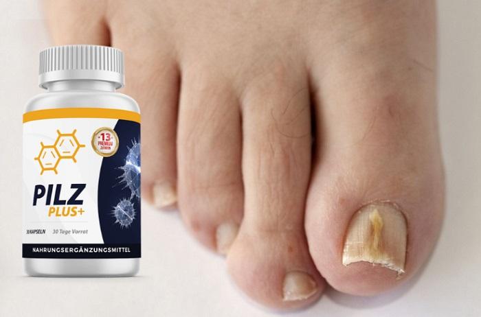 PilzPlus+von Fuß-und Nagelpilz: ein neuer, wissenschaftlich erwiesener, bakterieller Durchbruch zur Bekämpfung der wahren Ursache von Pilz!