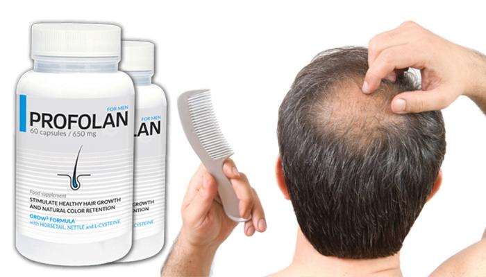 Profolan für das Haarwachstum: stimuliert effektiv den Haarwuchs und festigt deren natürliche Farbe